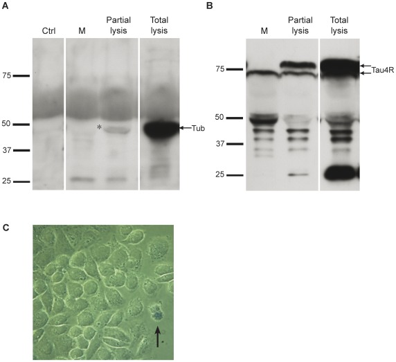 Overexpressed human tau is secreted by Hela cells. (A) No tubulin was noted in M before and after overexpression of human tau whereas tubulin staining was detected in the cell lysate (Total lysis) prepared in 6 ml of lysis buffer for comparison with the 6 ml of medium used to maintain Hela cells after transfection (arrow). In M collected from Hela cells overexpressing tau that were partially lysed (Partial Lysis) for few seconds in a solution of 0.01% Triton X-100 to induce some damage at the plasma membrane, tubulin staining became detectable (asterisk). (B) Cleaved tau was detected in M and L (lower arrow) whereas full-length tau was only detected in L (upper arrow in Total lysis). Full-length tau became detectable in M when Hela cells were partially lysed (Partial lysis) with a solution of 0.01% Triton X-100 (upper arrow). (C) Hela cells overexpressing human tau were stained with Trypan blue before being fixed to evaluate the percentage of cell death. Blue cells (arrow) corresponded to dead cells that had taken up Trypan blue.