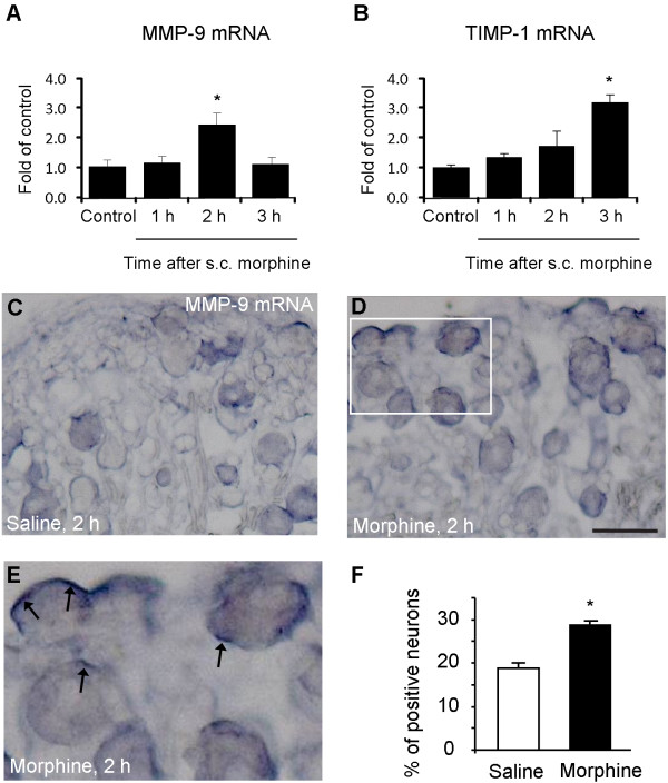 Subcutaneous morphine induces MMP-9 and TIMP-1 mRNA up-regulation in DRGs . (A, B) RT-PCR showing time course of subcutaneous morphine-induced MMP-9 (A) and TIMP-1 (B) mRNA expression in DRGs. * P