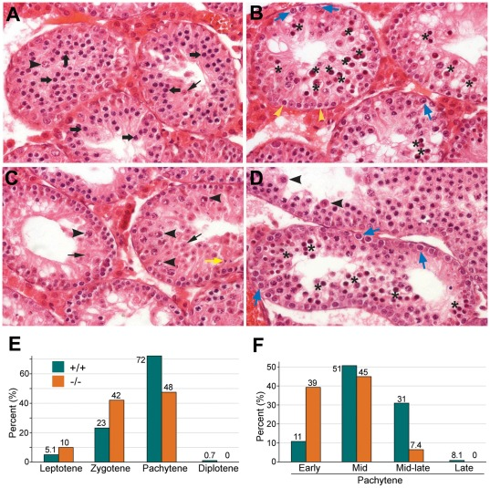 Pachytene arrest of UBR2 −/− spermatocytes at stage IV. ( A – D ) Testis sections from 8-week (A–C) and 3-week (D) old UBR2 −/− tubules. ( A ) Tubules that did not yet reach epithelial stage IV. A large number of spermatocytes (thick arrow) are present, indicating that the spermatogonial compartment keeps forming spermatocytes. Arrowhead, diplotene spermatocyte; thin arrow, round spermatid. The predecessors of these cells survived the stage IV arrest. ( B ) Tubules in epithelial stage IV as evidenced by the presence of large, G2 phase intermediate (In) spermatogonia (blue arrow) about to or dividing into B spermatogonia (yellow arrowhead). There is massive apoptosis of spermatocytes (asterisks). ( C ) Tubules after stage IV. A variable number of spermatocytes survive the passage through stage IV. The left tubule shows only one spermatocyte (arrowhead) and a few round spermatids (thin arrow) that stem from spermatocytes that survived stage IV one epithelial cycle earlier. The tubule on the right shows more spermatocytes (arrowhead) and round spermatids (black arrow) and even a few elongated spermatids (yellow arrow). ( D ) Stage IV arrest at the age of 3 weeks. The lower tubule shows massive apoptosis (asterisk). The upper tubule is after stage IV and shows two surviving spermatocytes (arrowhead), indicating that the arrest was already present before three weeks. ( E ) Surface-spread chromosomes of 781 control and 691 UBR2 −/− spermatocytes isolated from mice at P17 were stained with SCP3 and staged based on the morphology of SCP3-positive chromosomes. ( F ) Surface-spread chromosomes of 344 +/+ and 161 UBR2 −/− pachytene spermatocytes were substaged.