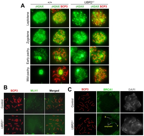 Defective DSB repair in UBR2 −/− spermatocytes. ( A ) Prolonged retention of the γH2AX staining in pachytene chromosomes of UBR2 −/− spermatocytes. Wild type and UBR2 −/− spermatocytes were stained with γH2AX (green) and SCP3 (red). Scale bars: 10 µm. ( B ) The near absence of MLH1 (green) foci in UBR2 −/− spermatocytes at pachytene. ( C ) Asynapsis in UBR2 −/− spermatocytes at pachytene as indicated by unpaired autosomes segregated near the X-Y pair. Control and UBR2 −/− chromosomes were stained for RNA polymerase II, SCP3, or BRCA1.