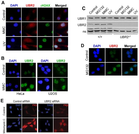 UBR2 is involved in ubiquitylation of chromatin-associated proteins in DNA-damaged somatic cells. ( A ) MEFs were treated with 0.1 µg/ml mitomycin C (MMC) or irradiated with UV at 20 J/m 2 . After 24 hrs later, cells were immunostained for UBR2 (red) and gH2AX (green). ( B ) HeLa and U2OS cells were treated with 0.1 µg/ml mitomycin C for 24 hrs and immunostained for UBR2. ( C ) Immunoblotting analysis of +/+ and UBR2 −/− MEFs treated with mitomycin C, UV, or MG132. ( D ) UBR2 is enriched in the nucleus of MEFs treated with 5 µM MG132. ( E ) Control and UBR2 knockdown U2OS cells were treated with 0.1 µg/ml mitomycin C for 24 hrs, followed by immunostaining with FK2 antibody.