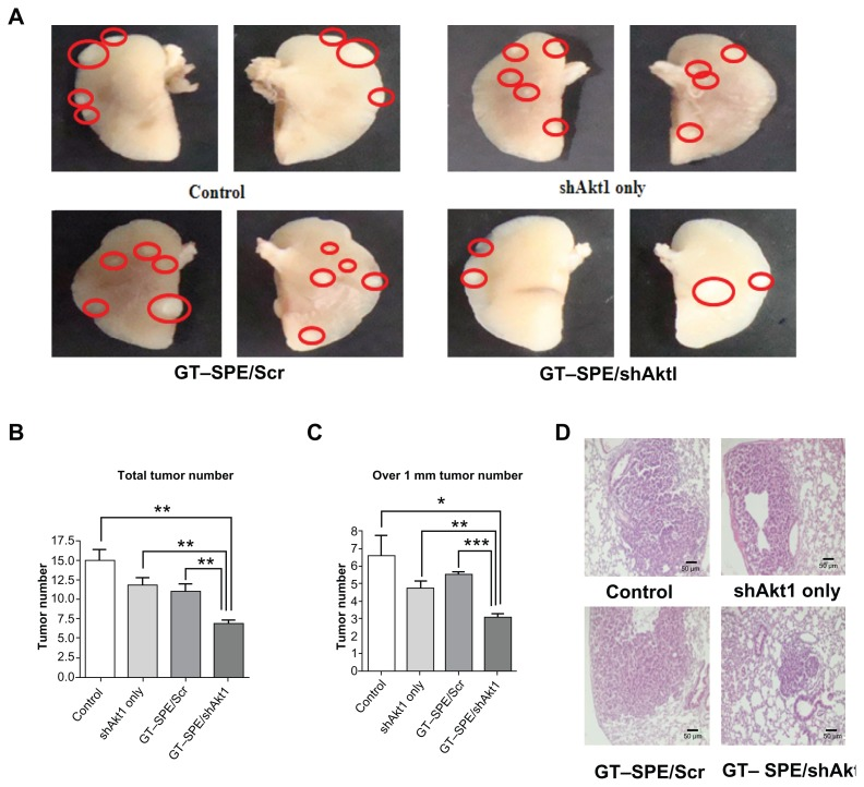 Therapeutic efficiency of GT–SPE as an aerosol gene delivery carrier in lung cancer model K -ras LA1 mice. Aerosol delivery of GT–SPE/Akt1 shRNA significantly inhibited lung tumor numbers and tumorigenesis. ( A ) Lung tumor lesions. ( B ) Total tumor numbers (n = 4, ** P