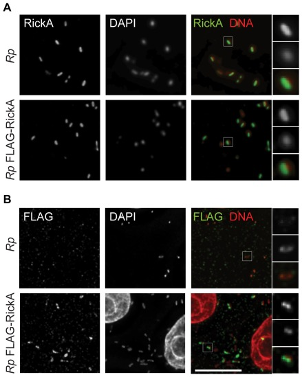 Detection of FLAG-RickA in bacteria. R. parkeri strains that were not transformed ( Rp ) or transformed with pMW1650-FLAG-RickA ( Rp FLAG-RickA) were used to infect Vero cells and then (A) labeled by immunofluorescence with anti-RickA antibody and stained for DNA with DAPI, or (B) labeled by immunofluorescence with anti-FLAG antibody and stained for DNA with DAPI. In the merged images, RickA or FLAG are labeled in green, and DNA in red. Scale bar 10 µm. Higher magnification images of individual bacteria (highlighted in boxes in the lower magnification images) are shown on the right.
