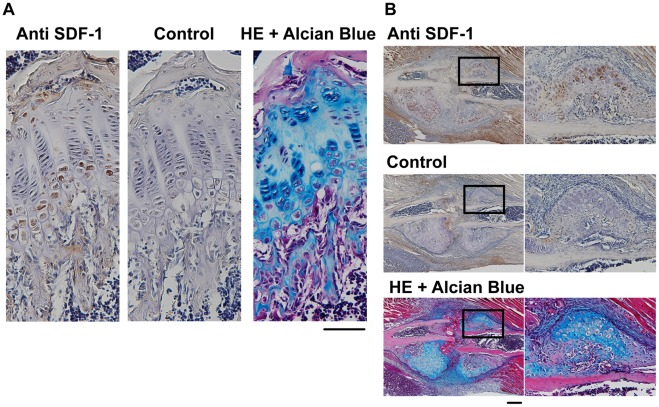 SDF-1 protein was expressed at the prehypertrophic and hypertrophic zones. The growth plate of 4-week-old mouse tibia (A) and endochondral callus of rib fracture (B) were stained with hematoxylin and eosin (HE), or immunohistochemically stained with antiSDF-1 antibody or IgG (control). Boxed areas in the panel are shown in a higher magnification (×200) in the right panels. The result is representative of three separate experiments; Scale bar, 200 µm.