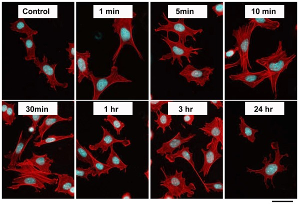 SDF-1 simulates actin assembly and stress fiber formation in a time-dependent manner. Primary chondrocytes from wild-type mice were treated with SDF-1 (100 ng/ml) as indicated. Cells were then fixed with paraformaldehyde and stained with Rhodamine-Phalloidin for actin filaments and 4′,6-diamidino-2-phenylindole for nuclei; Scale bar, 20 µm.