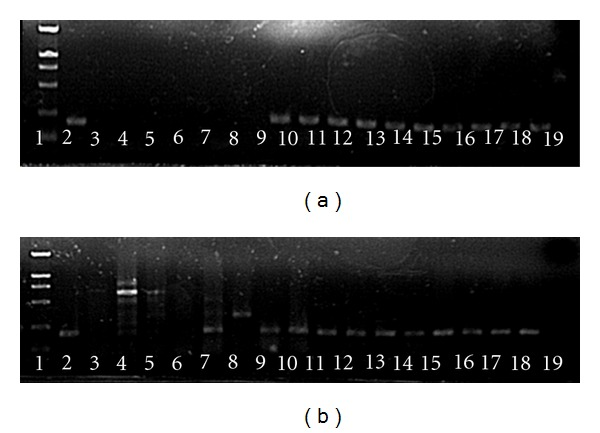 Agarose gel electrophoresis of SYBR Green real-time PCR products of H5N1 transcripts in lung and small intestine tissues. Lane 1: DL2000 Marker; Lane 2: positive control; Lanes 3–5: small intestine samples amplified with primer pairs N1-1/N1-2, M30F/M264R, H5-1/H5-3; Lanes 6–8: lung samples amplified with primer pairs N1-1/N1-2, M30F/M264R, H5-1/H5-3; Lanes 9–13: small intestine samples prepared by TR, QI, BI, AM, and RO, respectively, and amplified by primer pair SZNP-F2/R2; Lanes 14–18: lung samples prepared by TR, QI, BI, AM, and RO, respectively, and amplified with primer pair SZNP-F2/R2; Lane 19: negative control. (a) was for ferret tissues and (b) was for monkey tissues.