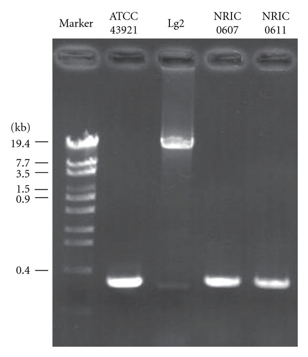 Expression of the capsule gene cluster in L. garvieae strains isolated from fish and sprout. The capsule gene clusters in L. garvieae strains were amplified by PCR, and the PCR products and marker ( λ -EcoT14 I digest) were subjected to agarose gel electrophoresis. The gel was stained with ethidium bromide.