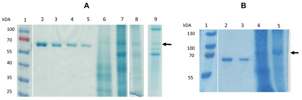 A) Coomassie-stained SDS-PAGE gel of transiently expressed H5 and H5tr. Crude, clarified extracts were prepared from N. benthamiana leaves that were expressing the H5 and H5tr proteins transiently. The extracts were separated by SDS-PAGE and compared to known BSA concentrations after staining with Coomassie Blue. Lane 1, prestained protein ladder (Fermentas); lane 2, 6.25 μg BSA; lane 3, 3.12 μg BSA; lane 4, 1.56 μg BSA; lane 5, 0.78 μg BSA; lane 6, concentrated H5, lane 7 concentrated H5tr, lane 8, crude H5 extract, lane 9 crude H5tr extract. The arrow indicates the position of the H5 protein. B) Coomassie-stained SDS-PAGE gel of H5 expressed in stable transgenic plants. Apoplast-targeted H5 from transgenic plants was separated lanes 4 and 5. Lane 1, protein ladder (Fermentas); lane 2, 5 μg BSA; lane 3, 2.5 μg BSA; lane 4, crude H5 extract; and lane 5, concentrated H5.