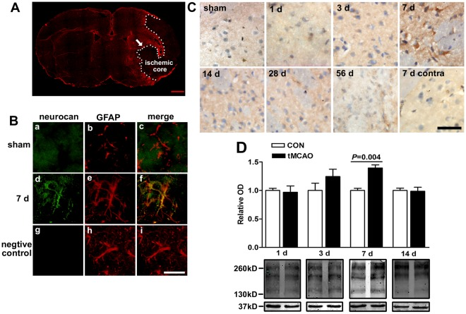 Effect of cerebral ischemia on neurocan expression in the penumbra region in rats. Fluorescent double immunostaining of neurocan and GFAP at 7 d after tMCAO in rats were performed (GFAP: red; neurocan: green; B (d-f) was the enlarged image from the penumbra region indicated by arrow in A; B (a-c) showed the image of the same region in sham group). The negative control by doing the same immunohistochemistry procedure without incubating with anti-neurocan was shown in g-i. DAB histochemistry staining of neurocan at different reperfusion duration after tMCAO were performed and the image from the penumbra region or contralateral (contra) region are shown in C. (D) Western blot analysis of neurocan expression (major core bands are about 150, 190, and 270 kD), which was normalized by GAPDH (∼37 kD). A: scale bars = 1 mm; B, C: scale bars = 25 µm. Values are expressed as percentage or fold change of control values and are from 3 to 6 rats.