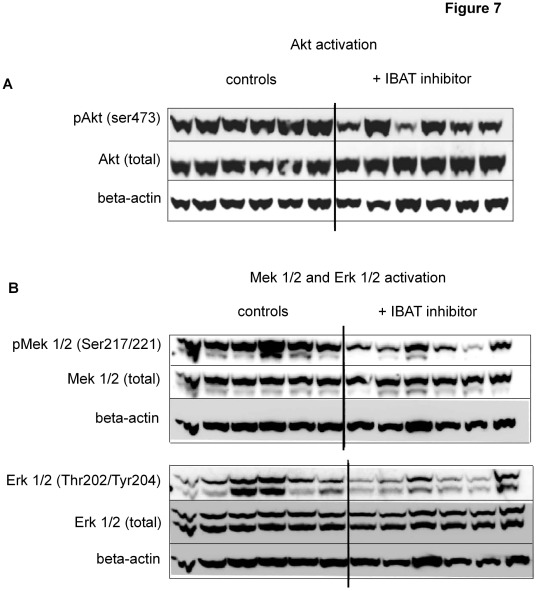 Pharmacological inhibition of Slc10a2 induces altered activity of important signal transduction pathways in ob/ob liver. The activation state of selected kinases important in glucose and lipid metabolism were investigated in individual liver protein extracts by phosphorylation site-specific antibodies in Slc10a2 inhibitor-treated and control ob/ob mice. ( A ) Western blot against liver pAkt (ser 473), the same membrane was stripped and reprobed with an antibody against total amount of Akt, ( B ) western blot against liver pMek1/2 (ser 217/221) and pErk1/2 (Thr 202/Tyr 204), the same membranes were consecutively stripped and reprobed with antibodies against total Mek1/2 and Erk1/2. All membranes were finally reprobed with an antibody against <t>beta-actin.</t> Blots are representative of four individual runs.