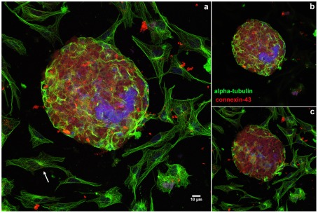 Comparison of the distribution of microtubules in 2D- and 3D-cardiac cultures. Cells were grown for 48 hours, fixed with 4% paraformaldehyde and triple-stained with polyclonal anti-connexin-43 antibody (red), mouse monoclonal anti-α-tubulin antibody (green), and the DNA-specific probe DAPI (blue). Cells were analyzed in a Leica laser scanning confocal microscope. Different optical focal planes of the cells were acquired and projected in order to show both the 2D-cells and the 3D-aggregates. 2D-cells display an extensive microtubular network (arrow, a ), whereas only a few cells in the surface of the aggregates display organized microtubules. An intense labeling of connexin 43 is only seen in the 3D-aggregates ( a ). To highlight the differences between the 2D and 3D-cells, we projected the slices corresponding to the 3D-aggregate only in image ( b ) and the slices corresponding to the 2D-cells only in image ( c ).