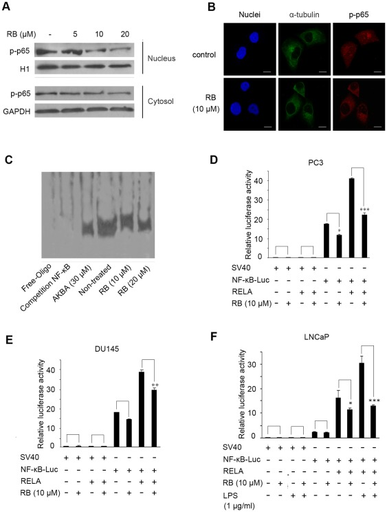 The effects of RB on function of NF-κB in vitro . (A) RB dosage-dependently inhibited the nuclear localization of p65 Lysates from cytoplasm and nucleus respectively after treating of PC3 cells with RB for 24 h were used for western blot. GAPDH and H1 respectively served as the loading control. (B) Immunofluorescence analysis of the inhibitory nuclear localization of p65 by RB-treatment for 12 h in PC3 cells. For confocal microscopy, α-tubulin and p-p65 were immunostained, with nuclei stained with DAPI. (Scale bar, 10 μm). (C) Pretreatment of PC3 cells with RB inhibited binding of nuclear extracts to the NF-κB binding site, as detected by electrophoretic mobility shift assay. Lysates from nuclei after treating of PC3 cells with RB for 24 h were used for EMSA. (D), (E) and (F) RB decreased NF-κB activation in PC3 and DU145 cells, and inhibited LPS-induced NF-κB activation in LNCaP cells. The inhibition was more significant when pNF-κB-Luciferase and RELA expression vector co-transfected. Transiently transfected cells were preincubated with RB for 24 h. The luciferase assay was done as described in Materials and Methods . In (D)–(F), results are the mean ± S.E. of three independent experiments, each performed in triplicate. p