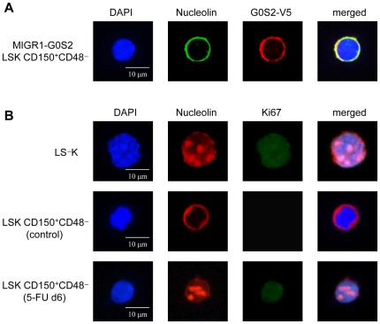 Quiescent HSCs exhibit cytosolic sequestration of nucleolin. (A) Nucleolin colocalizes with the overexpressed G0S2 protein in LSK CD150 + CD48 − cells purified from mice transplanted with BM cells transduced with the MIGR1-G0S2 V5-tagged retrovirus. (B) Expression of nucleolin and Ki67 was determined in wild-type LS − K (proliferative progenitors), LSK CD150 + CD48 − cells purified from wild-type mice (dormant HSCs), and LSK CD150 + CD48 − cells purified from wild-type mice injected 6 days earlier with a single dose of 5-FU (proliferative HSCs). Images of DAPI, nucleolin, and Ki67 staining are shown for a representative cell. The data represent two independent experiments.