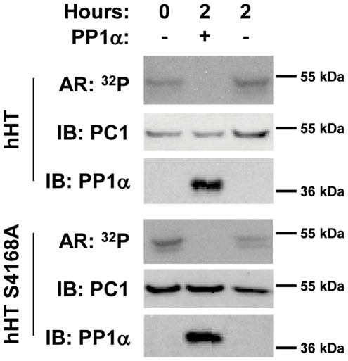 Dephosphorylation of human PC1 by PP1α. To determine whether PP1α can also dephosphorylate PKA-phosphorylated human PC1 (hPC1), GST-hPC1 C-tail fusion proteins (GST-hHT 193 and GST-hHT 193 S4168A) were purified, phosphorylated, and detected as described in Figure 4 . GST-hHT 193 S4168A was used in this analysis to be certain that phosphorylation and dephosphorylation was occurring on a residue other than S4168, which is equivalent to the site of PKA phosphorylation on mouse PC1 (S4159).