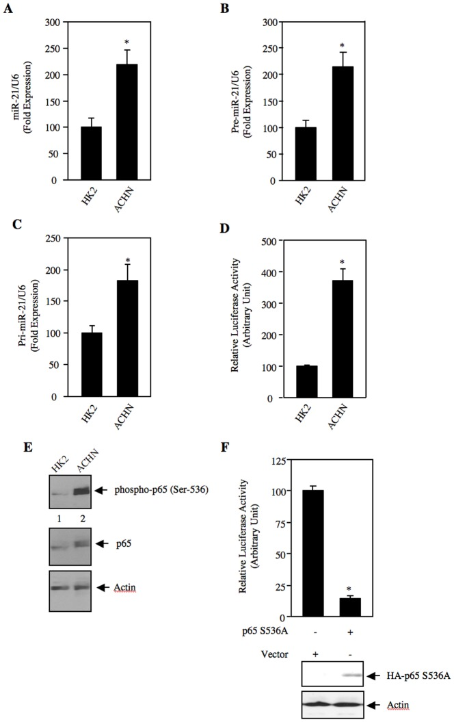 Expression of miR-21 in renal cancer cells. (A – C) Total RNAs from HK2 proximal tubular epithelial cells and ACHN renal cancer cells were used to detect mature miR-21 (panel A), pre-miR-21 (panel B) and pri-miR-21 (panel C) by real time qRT-PCR as described in the Materials and Methods . Mean ± SE of 4 measurements is shown. In panels A and B, *p = 0.004 vs HK2 cells. In panel C, *p = 0.02 vs HK2 cells. (D) HK2 and ACHN cells were transfected with miR-21-Luc reporter along with Renilla null plasmid. The cell lysates were used to determine luciferase activity as described in the Materials and Methods . Mean ± SE of 6 measurements is shown. *p = 0.001 vs HK2 cells. (E) Increased phosphorylation of p65 NFkB in renal cancer cells. Lysates of HK2 and ACHN cells were immunoblotted with phospho-p65 (Ser-536), p65 and actin antibodies. (F) Mutant p65 S536A inhibits miR-21 transcription. ACHN renal cancer cells were cotransfected with miR-21-Luc and p65 S536A expression vector. The luciferase activity was determined in the cell lysates. Mean ± SE of quadruplicate measurements is shown. *p = 0.02 vs vector. Bottom panels show expression of the HA-tagged p65 S536A and actin.