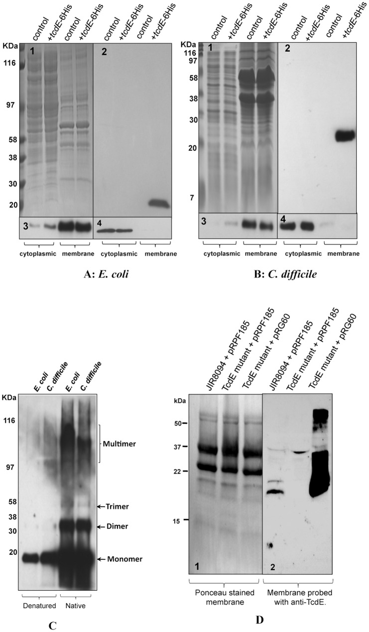 Localization of TcdE in E. coli and C. difficile . A. Cytoplasmic and membrane proteins analysis of E. coli lysogens of λCmrΔ(SR) carrying pBR322 (control) or pCD463 (+ tcdE -6xHis). B. Cytoplasmic and membrane proteins analysis of C. difficile strain carrying either pMTL84151 (control) or pRG46 (+ tcdE -6xHis). (1) SDS-PAGE coomassie stained gel. Western blots probed with 6XHis Tag antibody (2), ATPase Beta subunit antibody (3), and Ribosomal subunits LI/L2 monoclonal antibody (4). C. Membrane protein samples from bacterial cells expressing TcdE-6His <t>resuspended</t> in denature or native sample buffers and analyzed by Western blot using His-Tag antibody. D. Membrane proteins of JIR8094, TcdE mutant and complemented TcdE mutant strains were harvested from bacterial cultures induced with 20 ng/ml of ATc for 2 hours, separated in 16% <t>Tris-Glycine</t> gel and transferred into PVDF membrane. Panels 1. Ponceau stained membrane; 2. Probed with TcdE antibody.