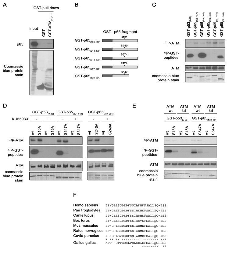 p65 interaction with ATM and p65 Ser 547 phosphorylation by ATM. ( A ) Confirmation of a direct interaction between ATM and p65 . Bacterially expressed GST or GST-ATM (1–247) fusion protein were purified on glutathione agarose beads and used to pull-down p65 from HEK-293 over-expressing HA-p65 cell lysate. Pulled down p65 was detected by immunoblotting with a p65 antibody (upper panel) and GST proteins were stained with coomassie bleu on the PVDF membrane. ( B ) Identification of the ATM target residue . Schematic representation of the different GST-p65 substrates used in the kinase assay. ( C ) In vitro kinase assay . Immunoprecipitated ATM from HEK-293 cells was incubated with GST-p53 and different GST-p65 proteins in presence of [γ− 32 P]ATP. The radiolabelled bands (upper panels) represent auto-phosphorylated ATM, phosphorylated GST-p53 or GST-p65. Levels of ATM and of substrate present in each reaction were determined by western blotting and by coomassie blue staining respectively (lower panels). ( D ) As in (C) In vitro kinase assay but with wt or mutated GST-p53 and GST-p65 proteins as substrates. ATM inhibitor KU55933 was added in some reaction samples as indicated. The same detection methodology than in ( C ) was used. ( E ) As in (D) in vitro kinase assay, but with purified recombinant ATM wt or kd instead of immunoprecipitated ATM and KU55933 utilization. ( F ) Conservation of Ser 547 among different species. Alignment of p65 C-terminal sequence from different mammalian and bird species.
