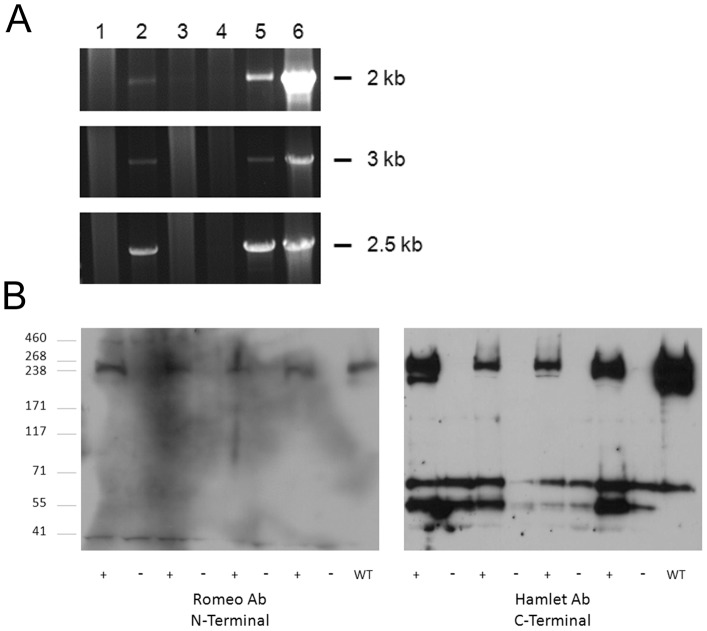 Lack of truncated Dysferlin mRNA or protein in injected muscle. (A) RNA was extracted from injected tissue, converted to cDNA, and analyzed by PCR using 3 overlapping primer sets (Top to Bottom, 5′ to 3′ end) which showed that the entire Dysferlin transcript was amplified in injected muscle. Lane 1 – no template, lane 2 – injected muscle, lane 3 – injected muscle with no reverse transcriptase enzyme, lane 4 – uninjected muscle, lane 5 – human muscle control RNA, lane 6 – pAAV.MHCK7.DYSF control DNA. (B) Protein was extracted from injected tissue and analyzed by western blot. 4 mice were analyzed following injection with rAAV5.Dysf. A wild-type mouse muscle sample was used as a control. Both an N-terminal antibody and a C-terminal antibody were used for protein analysis in these muscles. Only the full-length Dysferlin band is unique to injected muscles.