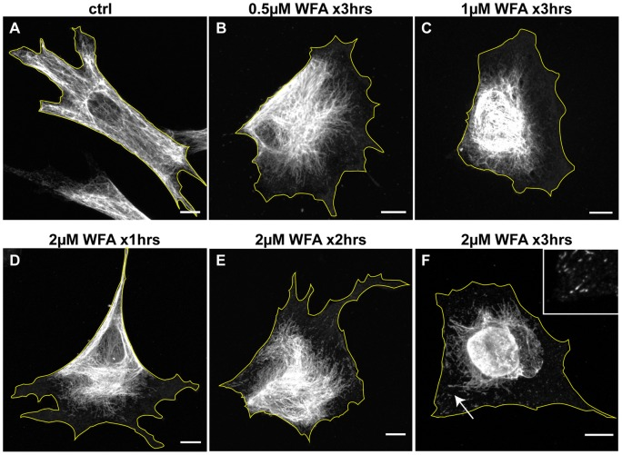 WFA treatment alters the subcellular organization of VIF. BJ-5ta cells were treated for 3 hrs (A–C and F) with DMSO alone (A), 0.5 μM WFA (B), 1 μM WFA (C), and 2 μM WFA (F). In addition, cells treated with 2 μM WFA are depicted after 1 hr (D) and 2 hrs (E) which show that the changes in VIF organization take place gradually. Cells were fixed and processed for immunofluorescence with vimentin antibodies. Arrow: a region depicted at higher magnification in the inset, showing non-filamentous vimentin particles and short IF or squiggles. Scale bars =10 μm.