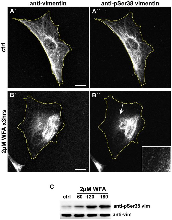 WFA treatment induces an increase in the phosphorylation of vimentin serine-38. BJ-5ta cells were treated for 3 hrs with DMSO (A) or 2 μM (B) WFA, then fixed and double labeled with vimentin (A′ and B′) and pSer38 vimentin (A′′ and B′′) antibodies. Scale bars =10 μm. Arrow: a region depicted at higher magnification in the inset showing vimentin particles stained with pSer38 vimentin antibody. (C) Whole cell lysates of cells treated with DMSO (ctrl) or 2 μM WFA for 60 min, 120 min, and 180 min, were separated by SDS-PAGE and stained with anti-vimentin and anti-vimentin pSer38 vimentin antibodies.