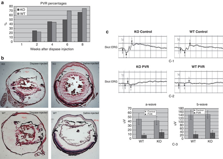 Development of clinical PVR in Rag-1 KO and WT mice after dispase injection. A total of 10 mice in each group were injected intraocularly with 0.2 U/ μ l dispase. At the time points specified, the eyes were examined for: (a) macroscopic presentation of PVR symptoms; and (b) histological evidence for PVR as established on H E-stained sections. (c) Skot ERGs recording α - and β -wave amplitudes. The contralateral untreated eyes were used as controls. The data in both panels represent the cumulative results obtained on 25 Rag-1 KO mice after dispase injection.