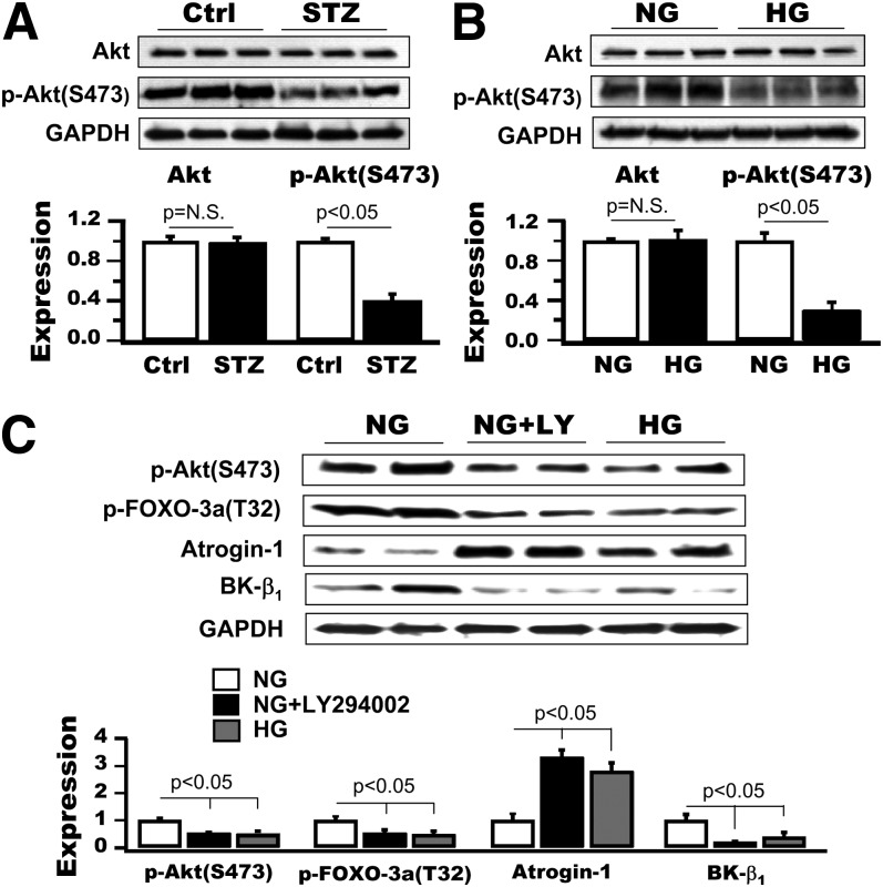 Role of Akt signaling in the FOXO-3a/atrogin-1-dependent downregulation of BK-β 1 expression. A and B : Immunoblots against anti-Akt and anti- p -Akt(S473) antibodies showed reduced p -Akt(S473) level but no change in the total Akt expression in diabetic aortas ( A ) and in human coronary SMCs with HG culture ( B ). C : A 24-h incubation with 7 μmol/L LY294002 (LY) mimicked the effects of HG on the levels of p -Akt(S473), p -FOXO-3a(T32), atrogin-1, and BK-β 1 expression in human coronary SMCs cultured in NG.