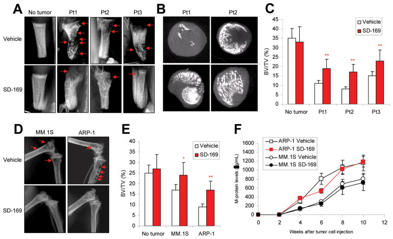 Administration of p38 inhibitor reduces myeloma-induced osteolytic bone lesions. In vivo injection of p38 specific inhibitor SD-169 significantly reduced myeloma-induced bone lesions in fetal human bones implanted into SCID-hu mice bearing a primary myeloma xenograft; lesions were detected by ( A ) radiography and ( B ) μ-CT scanning. ( C ) SD-169 also reduced bone lesions in distal femurs of ARP-1- or MM.1S-bearing SCID mice. ( D ) Tumor burden was measured as circulating human Ig in SCID mice inoculated with ARP-1 or MM.1S cells treated without or with p38 inhibitor SD-169. CD138 + primary myeloma cells were isolated from three myeloma patients (Pt1, Pt2, and Pt3) with high/detectable p38 activity and injected into the implanted human bones of SCID-hu mice. Myeloma ARP-1 or MM.1S cells were injected intravenously into SCID mice (10 per each cell line). When circulating M-protein levels reached 10 μg/ml, mice were fed daily with SD-169 (10 mg/kg) or an equal volume of PBS (vehicle controls) for a total of 30 days. Arrows indicate osteolytic bone lesions.