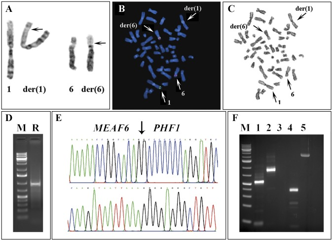 Cytogenetic, FISH, and PCR analyses of the metastasis from the endometrial stromal sarcoma. A) Partial karyotype showing chromosome aberrations der(1)t(1;6)(p34;p21) and der(6)t(1;6)(p34;p21) together with the corresponding normal chromosomes; breakpoint position are indicated by arrows. B) FISH using BAC RP11-508M23 (green signal) from 1p34 containing the MEAF6 gene and a pool of the RP11-600P03 and RP11-436J22 BACs (red signal) from 6p21 containing the PHF1 gene. A part of the probe from 6p21 (red signal) has moved to the derivative chromosome 1, while the entire probe containing MEAF6 has moved to the derivative chromosome 6. The data suggest that the functional fusion gene is generated on the der(6). C) G-banding of the metaphase spread shown in (B). D) Amplification of a 1 kb cDNA in the 5′-RACE analysis (R) using reverse PHF1-721R and PHF1-526R primers and the universal forward primers. E) Partial sequence chromatograms of the 1 kb cDNA fragment showing the junctions (arrow) of MEAF6-PHF1 chimeric transcript (upper) and genomic hybrid DNA fragment (lower). F) RT-PCR and genomic PCR using specific MEAF6 and PHF1 primers. Lane 1: Amplification of MEAF6-PHF1 cDNA fragment with MEAF6-322F/PHF1-380R primers, lane 2: Amplification of MEAF6 transcript with MEAF6-15F/MEAF6-700R, lane 3: PHF1-18F/MEAF6-729R primer set did not amplify the reciprocal PHF1-MEAF6 cDNA, lane 4: Amplification of PHF1 transcript with PHF1-18F/PHF1-327R primers, lane 5: Amplification of MEAF6-PHF1 genomic hybrid DNA fragment with MEAF6-371F/PHF1-302R primer combination. M, 1 kb DNA ladder.