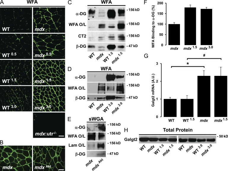 SSPN increases cell surface glycosylation in mdx muscle. (A and B) Transverse cryosections of quadriceps muscles from SSPN-Tg (A) or Akt transgenic (B) muscles were stained with biotinylated Wisteria floribunda agglutinin (WFA) and visualized by indirect immunofluorescence. Bars, 50 µm. (C) Skeletal muscle protein lysates from the indicated mouse models were enriched by WFA lectin affinity chromatography (WFA enrichment) and analyzed with indicated antibodies and overlayed (O/L) with WFA lectin (WFA O/L). (D) Skeletal muscle protein lysates were enriched by WFA lectin affinity chromatography (WFA enrichment) and subjected to the same analysis as described in C. (E) WFA and laminin overlay assays were performed on protein lysates enriched with succinylated WGA (sWGA) lectin chromatography from mdx and Akt transgenic mdx ( mdx Akt ) muscle. Mice were treated with doxycycline to induce Akt expression in skeletal muscle as described previously ( Peter et al., 2009 ). Laminin overlays (Lam O/L) represent binding to immobilized α-DG on nitrocellulose transfers. Immunoblotting with antibodies to α-DG is shown. (F) Levels of WFA binding to α-DG were quantitated by densitometry of bands from overlay assays, and data are expressed relative to mdx levels (100%). Error bars represent standard deviation of the mean ( n = 2–3 muscle preps per genotype). (G) Quantitative RT-PCR was used to investigate whether overexpression of SSPN alters RNA levels of CT GalNAc transferase ( Galgt2 ). RNA was isolated from WT, WT 1.5 , mdx , and mdx 1.5 skeletal muscle. Data are expressed relative to non-Tg WT controls. Error bars represent standard error of the mean (*, P