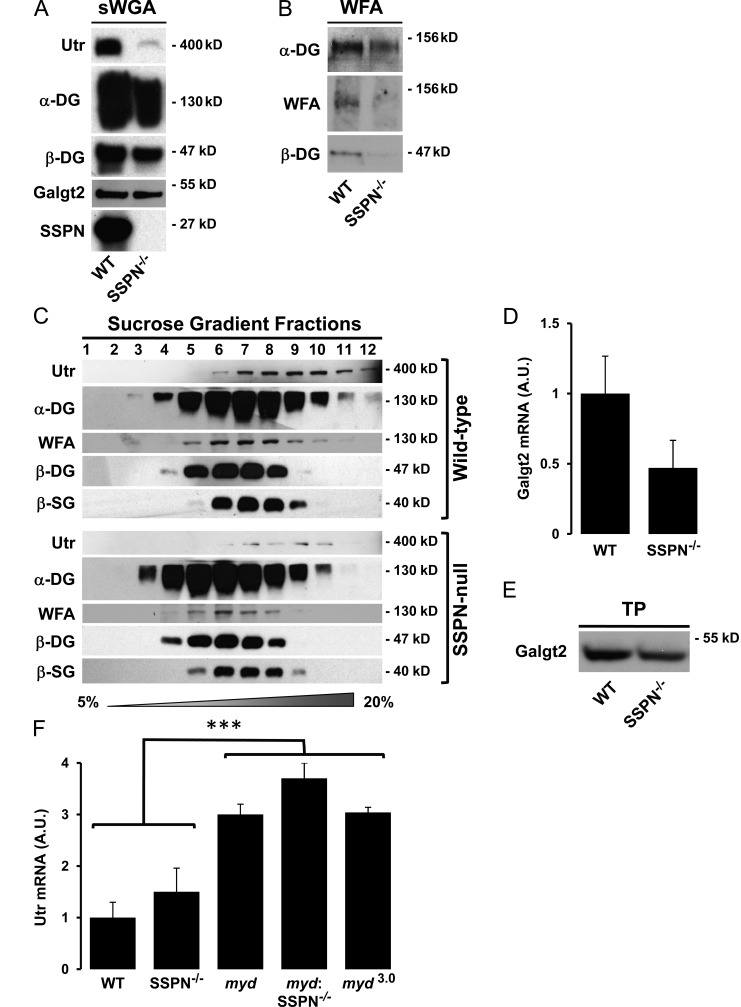 Loss of SSPN impairs utrophin expression and glycosylation of α-DG. (A) Skeletal muscle lysates from wild-type (WT) and SSPN-deficient (SSPN −/− ) mice were enriched by <t>sWGA</t> lectin chromatography, and 10-µg protein samples were immunoblotted with the indicated antibodies. (B) Skeletal muscle protein lysates from WT muscle and SSPN-null (SSPN −/− ) mice were enriched by WFA lectin affinity chromatography, and nitrocellulose transfers of 10-µg WFA eluates were probed with the indicated antibodies or incubated with WFA lectin (WFA). Immunoblot exposures for each antibody/lectin staining are identical in Fig. 6 F , permitting direct comparisons. (C) sWGA-enriched protein samples were separated by ultracentrifugation through 5–20% sucrose gradients. Fraction numbers are indicated above the panels, where fraction 1 represents the lightest region of the gradient. Protein samples were analyzed by immunoblotting to the indicated antibodies, and exposures are identical for WT and SSPN-null fractions. (D) Quantitative RT-PCR was used to investigate whether loss of SSPN alters RNA levels of CT <t>GalNAc</t> transferase ( Galgt2 ). Data are expressed relative to that of WT controls. Error bars represent standard deviation ( n = 4 mice per genotype). (E) Skeletal muscle from WT and SSPN-deficient (SSPN −/− ) muscles were solubilized in 60 µg RIPA buffer and analyzed by immunoblots with Galgt2 antibodies. (F) Quantitative RT-PCR was used to investigate the effect of SSPN on utrophin (Utr) mRNA levels. RNA was isolated from WT, SSPN-null (SSPN −/− ), LARGE-null ( myd ), SSPN-deficient myd ( myd :SSPN −/− ), and threefold SSPN-Tg: myd ( myd 3.0 ) skeletal muscle. mRNA expression levels were normalized to GAPDH mRNA. Data are expressed relative to that of WT controls. Error bars represent standard deviation ( n = 3 mice per genotype; ***, P