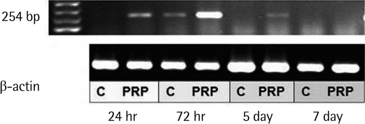 PRP on <t>mRNA</t> expression of <t>MMP-9</t> in RT-PCR PRP, platelet-rich plasma; MMP, matrix metalloproteinase; RT-PCR, reverse transcription polymerase chain reaction.