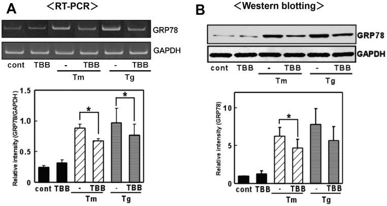 A CK2 inhibitor inhibited ER stress-induced GRP78 expression. 4,5,6,7-tetrabromobenzotriazole (TBB) inhibited GRP78 expression at the mRNA and protein levels. (A) Primary cultured glial cells were pre-treated with 4,5,6,7-tetrabromobenzotriazole (TBB: 5 µM) for 3 h and then treated with tunicamycin (Tm: 0.01 µg/mL) or <t>thapsigargin</t> (Tg: 0.01 µM) for 6 h. RT-PCR was performed using specific primers for each mRNA. n = 4/group * p