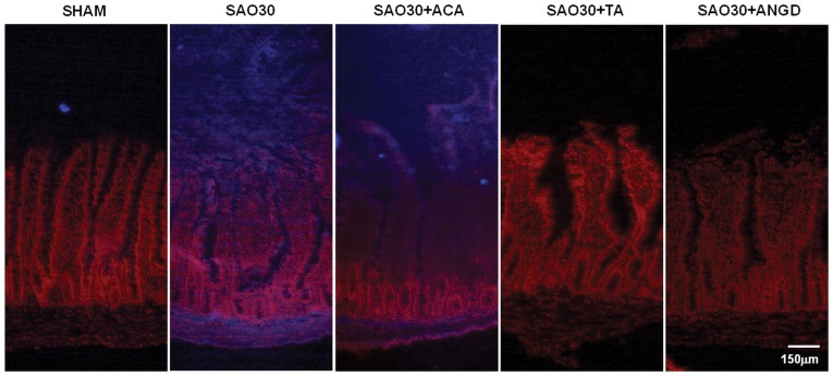 In situ zymography for trypsin in jejunal sections. Representative micrographs of trypsin activity as observed by fluorescence of specific substrate (blue), nuclei counterstaining with propidum iodine (red) in SHAM animals or animals subjected to SAO protocol with luminal inhibition with acarbose (ACA), tranexamic acid (TA) or nafamostat mesilate or without inhibitors (SAO30).
