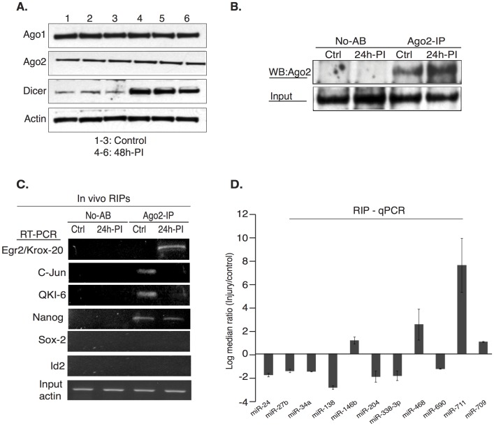 miRNAs induce post-transcriptional gene silencing through association with Ago-2 in functional complexes. (A). Protein expression of Ago-1, Ago-2 and Dicer in sciatic nerves before and after nerve injury to confirm the expression of the miRNA processing machinery proteins. Actin was used as a loading control. (B) Cytoplasmic lysates isolated from control sciatic nerves and injured distal segments (10 nerves each) were immunoprecipitated with Ago-2 antibody (Cell Signaling, USA) or IgG control. A portion (1/3 rd ) of the sample was used for each of the analysis and the experiment was repeated twice. Input, No-Antibody (No AB) and Ago-2 immunoprecipitated protein was analyzed by western blotting with Ago-2 antibody, which shows enrichment of Ago-2 in the 24 hour post-injury samples. (C). For RNA-IPs (RIPs), mRNAs that were co-immunoprecipitated with Ago-2 in vivo, were reverse transcribed using oligo-dT primer and genes of interest were PCR amplified using gene-specific primers (Krox-20 = 1274 bp, C-Jun = 689 bp, Nanog = 753 bp, QKI-6 = 1345 bp, Sox-2 = 958 bp and ID-2 = 588 bp). (D). microRNAs that were co-immunoprecipitated with Ago-2 in complex with their targeted mRNAs, were reverse-transcribed with microRNA specific RT-primers using Multiscribe RT kit. Ago-2 associated microRNAs were detected by real time qPCR with miRNA specific Taqman probe/primer sets. Data were normalized to input and an internal control. Fold difference (2 -ΔΔCT ) in the association of individual microRNAs with Ago-2 protein between injured and control nerves was plotted as log 2 median ratio and error is expressed as standard deviation.