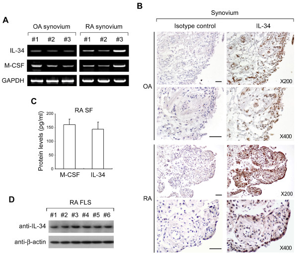Expression of interleukin-34 (IL-34) in human rheumatoid arthritis (RA) synovium and synovial fluid (SF) . ( A ) IL-34 and macrophage colony-stimulating factor (M-CSF) mRNA levels in synovia from patients with RA ( n = 3) and osteoarthritis (OA) ( n = 3) were determined by reverse transcriptase PCR (RT-PCR). Synovium were homogenized and lysed, and total RNA was extracted as described in Materials and Methods. Glyceraldehyde 3-phosphate dehydrogenase (GAPDH) mRNA levels were detected as a control. ( B ) Representative immunohistochemical images of OA or RA synovia stained with antibodies against IL-34 or isotype controls. Images are shown at 200× (upper) and 400× (lower) magnification. Scale bars = 100 μm. ( C ) Synovial fluid (SF) from RA patients ( n = 7) (RA SF) was collected and the concentrations of M-CSF and IL-34 were measured using an enzyme-linked immunosorbent assay (ELISA) assay. ( D ) Expression of IL-34 protein in fibroblast-like synovial cells (FLS) from RA patients ( n = 6) was determined by <t>immunoblotting</t> against human IL-34. Whole-cell lysates of RA FLS cells were resolved by SDS-PAGE and followed by immunoblotting with anti-human IL-34 and anti-β-actin antibodies.