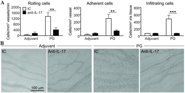 Cellular trafficking responses exacerbated in the iris by IFNγ deficiency areabrogated by IL-17A blockade . ( A ) Weekly i.p. injections of anti-IL-17A blocking antibody or isotype-matched control antibody (IC) were administered into PG-immunized GKO/TCR-Tg mice. Adjuvant-immunized control mice were also administered the anti-IL-17A blocking antibody and IC. The leukocyte trafficking response within the iris was assessed by intravital microscopy at three weeks following PG-immunization. ** P