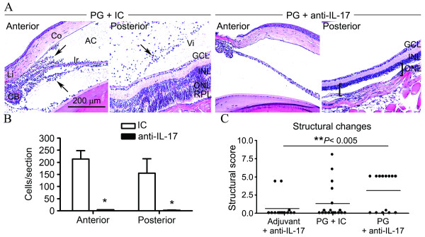 IL-17 inhibition prevents uveitis but results in photoreceptor toxicity . ( A ) PG-immunized GKO/TCR-Tg mice were administered weekly i.p. injections of anti-IL-17A blocking antibody or isotype-matched control antibody (IC). Control mice were immunized with adjuvant and the anti-IL-17A blocking antibody or IC. Histological assessment of uveitis was performed at three weeks post PG-immunization. Representative images of the anterior and posterior eye segments are shown. Increased leukocyte infiltration in IC control mice is indicated by arrows (two left panels) (H E stain). The brackets on the far right panel (anti-IL-17 treated group) indicate the space where the ONL and photoreceptor layers would normally be present, but which are absent. Original magnification: 200X. AC, anterior chamber; Co, cornea; CB, ciliary body, Ir, iris; Li, limbus; Vi, vitreous, GCL, ganglion cell layer, INL, inner nuclear layer, ONL, outer nuclear layer, PRL, photoreceptor layer. ( B ) The infiltrating cells present within the aqueous humor of the anterior eye segment or vitreous body of the posterior eye segment were quantified. ( C ) Structural changes within the retina were scored in both eyes of each mouse. Data points represent individual eyes from each mouse. * P