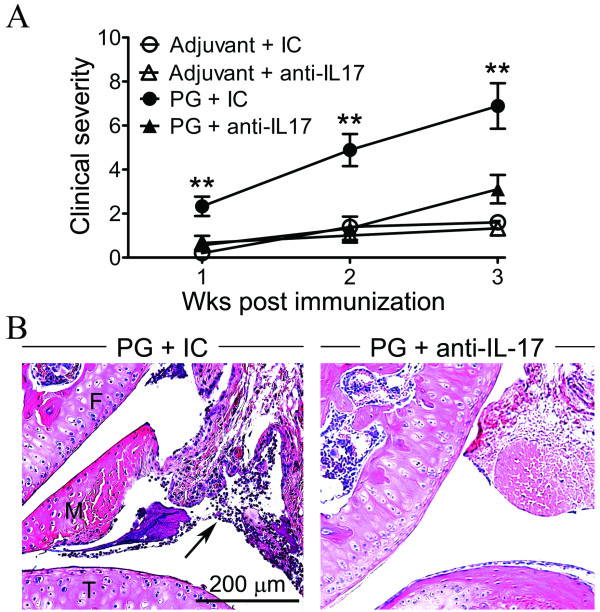 IFNγ regulates the requirement for IL-17 in PG-induced arthritis . PG-immunized GKO/TCR-Tg mice were administered weekly i.p. injections of anti-IL-17A blocking antibody or isotype-matched control antibody (IC). Mice were also immunized with adjuvant along with anti-IL-17A blocking antibody and IC. The peripheral arthritis was assessed as a function of time. ( A ) Clinical arthritic scores in GKO/TCR-Tg mice treated with anti-IL-17A or IC; ** P