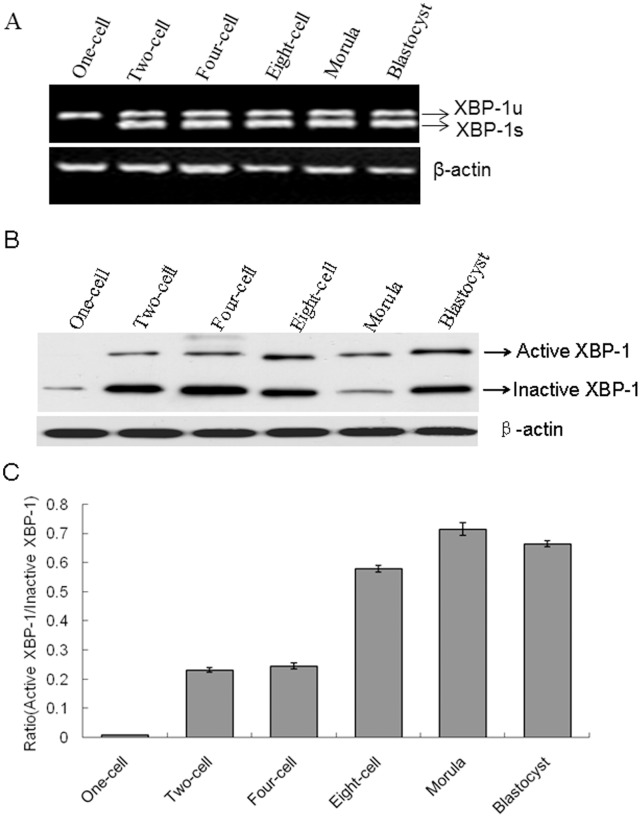 Detection of XBP-1 splicing in mouse preimplantation embryos. A. Expression of XBP-1 mRNA was analyzed using RT-PCR. RNA was isolated from 50 embryos of each stage and reverse-transcribed. cDNA was used as the template for PCR. XBP-1 s and XBP-1 u amplicons were separated on a 2% (w/v) agarose gel. B. Expression patterns of active and inactive XBP-1 proteins were detected in two-cell embryos using Western blotting. β-actin served as the control. C. Quantification of the Western blot analysis in B. The data were presented as means ± SD from three independent experiments.