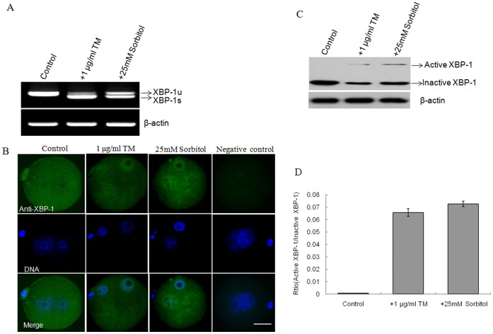 Induction of active XBP-1 in one-cell stage embryos. A. XBP-1 mRNA was spliced to produce the spliced and unspliced forms in the presence of TM and sorbitol. B. Immunofluorescence micrographs of two-cell stage embryos with TM or sorbitol. Active XBP - 1 protein was detected in nuclei in the presence or absence of stress inducers (green). Negative control embryos were probed directly with the secondary antibody. Nuclei were stained with DAPI (blue). Scale bar, 20 μm. C. Active and inactive XBP-1 proteins were detected in the presence and absence of stress inducers using Western blotting. β-actin served as a control. D. Quantification of the Western blot analysis in C. The data were presented as means ± SD from three independent experiments.