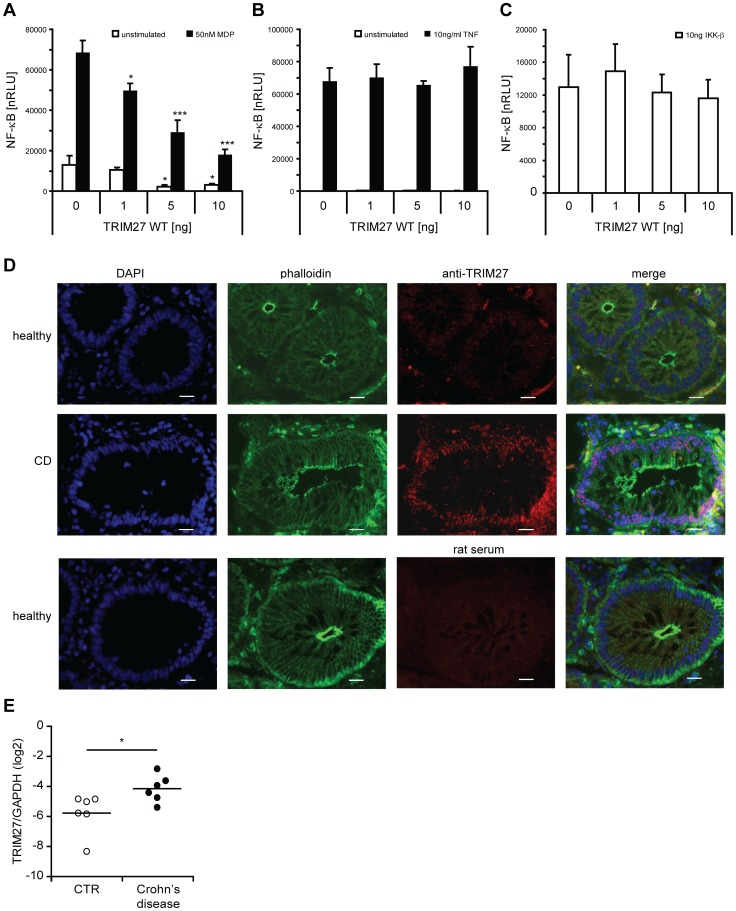 <t>TRIM27</t> negatively regulates NOD2 signaling. A–C) NF-κB luciferase assays in HEK293T cells to determine the influence of TRIM27 overexpression on MDP-induced NOD2-mediated (A), TNF- (B), or IKK-β-induced (C) NF-κB activation. Normalized luciferase activity (nRLU) of unstimulated (white bars) and stimulated (black bars) samples is shown. Values are given as mean+SD (n = 3). *, P
