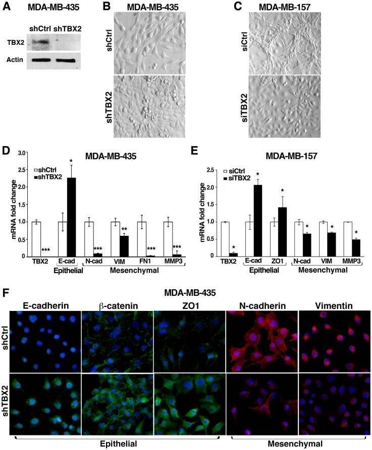 TBX2 imparts a mesenchymal phenotype on human breast cancer cells. (A) Western blot analysis shows efficient TBX2 knockdown in human MDA-MBA-435 tumor cells stably expressing TBX2-specific shRNA (shTBX2) as compared to cells expressing non-target shRNA (shCtrl). Actin was used as loading control. (B) Depletion of TBX2 in MDA-MB-435 tumor cells leads to a loss of the mesenchymal morphology characteristic for this breast carcinoma cell line. Representative images of high-density cell cultures are shown (40X magnification). (C) Inhibition of TBX2 in human MDA-MB-157 breast carcinoma cells through transient transfection with TBX2-targeted siRNAs (siTBX2) induces a 'cobblestone'-like epithelial cell morphology. In contrast, MDA-MB-157 cells transiently transfected with scrambled siRNA control (siCtrl) exhibit a profound 'spindle-like' mesenchymal phenotype. Representative images of high-density cultures (40x magnification) of tumor cells three days post siRNA transfection are shown. (D, E) qPCR analysis of TBX2 and EMT marker expression in (D) MDA-MB-435 cells expressing shCtrl or shTBX2, and in (E) MDA-MB-157 cells 3 days post transfection with siCtrl or siTBX2. TBX2 knockdown leads to an upregulation of epithelial adhesion and tight junction genes (E-cad = E-cadherin ; ZO1 = zona occludens 1 ), whereas it results in loss of mesenchymal marker expression: N-cad = N-cadherin ; VIM = Vimentin ; FN1 = Fibronectin , and MMP3 = matrix metalloprotease 3 . Values were normalized to GAPDH and fold changes compared to the respective control groups are shown. Data represent the mean ± SEM (n = 3; Student t -test); p-values: *p