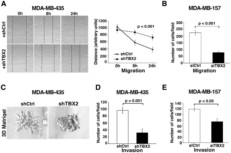 Knockdown of TBX2 in metastatic human breast cancer cell lines abrogates tumor cell invasion. (A, B) Inhibition of TBX2 significantly reduces cell motility rates of (A) MDA-MB-435 tumor cells in in vitro scratch assays, and (B) of MDA-MB-157 breast cancer cells in Transwell migration assays (see Methods ). Data represent the mean ± S.D. (n = 3; ANOVA test). ( C ) MDA-MB-435 cells stably expressing TBX2-specific shRNA (+shTBX2) grow as non-invasive spheres in three-dimensional (3D) Matrigel, whereas MDA-MB-435 control tumor cells expressing non-target shRNA (+shCtrl) grow as spheroids that invade the surrounding extracellular matrix. (D, E) Transwell matrigel assays showing that knockdown of TBX2 significantly reduces invasion rates of ( D ) MDA-MB-435, and (E) MDA-MB-157 breast tumor cells. Data represent mean ± S.D. (n = 3; Student's t -test). P values are indicated.