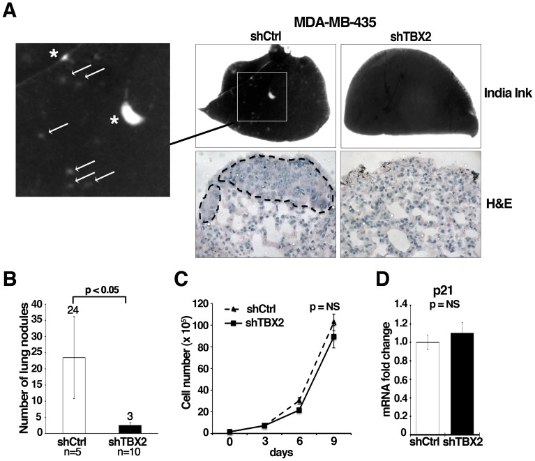 Knockdown of TBX2 reduces pulmonary metastasis of human MDA-MB-435 breast carcinoma cells. (A) Representative images of lungs harvested from athymic nu/nu Nude mice forty days after tail vein injection with MDA-MB-435 tumor cell clones expressing either control non-target shRNA (shCtrl) or TBX2-specific shRNA (shTBX2). Top panel: India ink staining of lungs shows the absence of surface lung metastases in mice injected with shTBX2-expressing MDA-MBA-435 tumor cells (Magnification 7x). Only the control group produced macroscopic lung nodules (asterixes) and an elevated number of micrometastases (white arrows). Bottom panel: H E stained paraffin-sections of representative lungs from each study group (Magnification: 40X). Dotted lines highlight lung metastases in the control group. (B) Quantification of total lung metastasis burden in the same sets of mice as in (A). Average numbers of lung surface metastases are shown; white column = mean of 5 control mice analyzed: black column = mean of 10 mice injected with two MDA-MB435-shTBX2 tumor cell clones. Data represent the mean ± S.D. (n≥5; Student t -test). (C) Inhibition of TBX2 does not significantly affect cell proliferation of MDA-MB-435 tumor cells. Equal numbers of control non-target shRNA and shTBX2-expressing cells were grown under sub-confluent conditions and counted every 3 days over a 9-day period. Error bars represent the mean ± S.D. (n = 3; Student t -test). (D) qPCR showing that stable knockdown of TBX2 does not significantly alter p21 mRNA expression levels in MDA-MB-435 tumor cells. Values were normalized to GAPDH and fold changes compared to the shRNA control group are shown. Error bars represent the mean ± SEM (n = 3; Student t- test). NS = not significant.