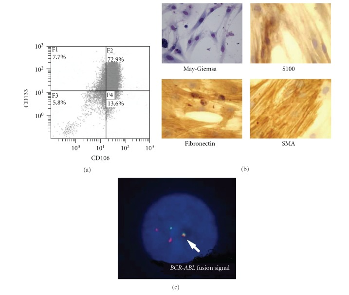 Characteristics of myofibroblasts from CML cell-engrafted NOD/SCID murine bone marrow cells. (a) Expression of CD106 and <t>CD133.</t> After selected with anti-human CD34 Ab-coated magnetic beads cells were further separated with anti-human D7-FIB Ab-coated magnetic beads, and analyzed. (b) Microscopical appearance of the separated myofibroblasts from CML cell-engrafted NOD/SCID murine bone marrow cells (×400). May-Giemsa, and immunocytochemical staining of S100, human fibronectin, and human SMA. (c) FISH analysis of the separated myofibroblasts from CML cell-engrafted NOD/SCID murine bone marrow. BCR-ABL fusion signal is indicated with an arrow. 83 cells are positive in total 100 cells analyzed.