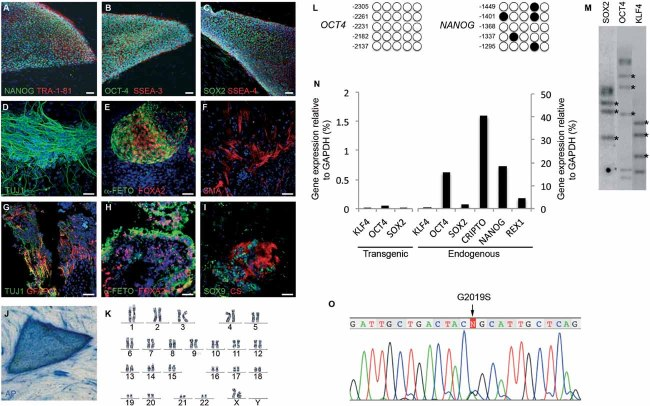 Generation and characterization of PD patient-specific iPSC lines A-C. Representative colonies of passage-20 LRRK2-PD-iPSC (cell line SP13.4) stained positive for the pluripotency-associated markers NANOG, OCT4 and SOX2 (green), TRA-1-81, SSEA3 and SSEA4 (red). D-F. Immunofluorescence analyses of LRRK2-PD-iPSC (cell line SP13.4) differentiated in vitro show the potential to generate cell derivatives of all three primary germ cell layers including ectoderm (D, stained for TUJ1, green), endoderm (E, stained for α-fetoprotein, green, and FOXA2, red) and mesoderm (F, stained for smooth muscle actin, SMA, red). G-I. Immunofluorescence analyses of sections from a teratoma induced by injecting LRRK2-PD-iPSC (cell line SP13.4), showing derivatives of the three main embryo germ layers: ectoderm (G, stained for TUJ1, green, and GFAP, red), endoderm (H, stained for α-fetoprotein, green, and FOXA2, red) and mesoderm (I, stained for SOX9, green, and chondroitin sulphate, CS, red). In ( A–I ) nuclei are counterstained with DAPI, shown in blue. Scale bars, 50 µm. J. LRRK2-PD-iPSC (cell line SP13.4) stained for alkaline phosphatase (AP) activity. K. Normal karyotype of LRRK2-PD-iPSC (cell line SP13.4) at passage 20. L. Bisulphite genomic sequencing of the OCT4 and NANOG promoters showing demethylation in LRRK2-PD-iPSC (cell line SP13.4). M. Southern blot analysis of LRRK2-PD-iPSC (cell line SP13.4) showing genomic integrations (asterisk) of the indicated retroviruses. N. RT-qPCR analyses of the expression levels of retroviral-derived reprogramming factors (transgenic) and endogenous expression levels (endogenous) of the indicated genes in LRRK2-PD-iPSC (cell line SP13.4). O. Direct sequence of genomic DNA from LRRK2-PD-iPSC (cell line SP13.4) identifying the LRRK2 G2019S mutation.