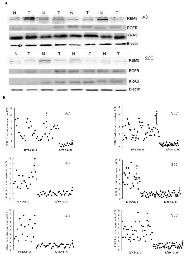 Expression of RBM5, EGFR and KRAS protein in NSCLC . A, Western blot of RBM5, EGFR and KRAS protein expression in representative tissue samples from NSCLC and non-tumor specimens. Total cellular protein was extracted, subjected to Western blot analysis and quantified using Quantity One software. B, Quantitative data from A. *p