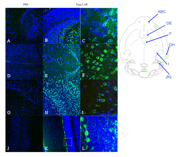 Engineered Tregs localize to the CNS when administered intranasally in naive mice. Treg cells were administered intranasally in the right nostril and the distribution of green fluorescent protein (GFP) in horizontal cryosections of the brain of naïve mice was studied 24 hours after the delivery. The schematic drawing describes a selective immunofluorescence in various brain regions (green spots). GFP immunofluorescence is present in the granular and to a lower extent in the external plexiform layer of the olfactory bulb (B, C) , lateral septal nucleus (E) , central medial thalamic nucleus (F) , ectorhinal cortex (H) , medial genic nucleus (I) and cerebellum (K, L) of a CAR Treg-treated naïve mouse. Corresponding areas showing no GFP fluorescence in a PBS-treated naïve mouse are (A, D, G, J) . Enlargements of areas in olfactory bulb and cerebellum (as indicated by boxes) are depicted in C and L. Detail of GFP immunofluorescence in the central medial thalamic nucleus and medial genic nucleus (F, I). Cell nuclei (blue) are stained with DAPI Original magnification 10× (A, B, D, E, G, H, J, K) and 40× (C, F, I, L).