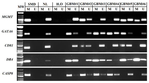 Representative methylation specific PCR reaction for MGMT, GATA6, CD81, DR4 and CASP8 genes. U represents amplification of unmethylated allele, and M represents methylated allele. Standard Bisulfite Converted Universal Methylated Human DNA (SMD) and normal human peripheral lymphocytes (NL) served as positive and negative methylation controls, respectively. MW – molecular weight. H 2 O – water control. GBM#1-6 glioblastoma patient tumor samples.
