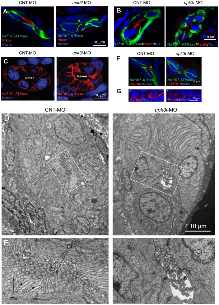 Disruption of epithelial polarity in upk3l morphants. (A–B) Localization of Prkcz (A) or Pard3 (B), Na + /K + -ATPase, and nuclei in cross-sectioned embryos treated with control (CNT-MO) or upk3l MO ( upk3l -MO). (C) Distribution of Na + /K + -ATPase and nuclei in 2-dpf control or morphant embryos. (D–E) TEM analysis of the proximal segment of PTs from control or morphant embryos. (D) Cross section of tubule show that it is comprised of 5–6 cells surrounding a central lumen. (E) At higher magnification, control lumens were filled with microvilli (mv) and cilia (ci), whereas microvilli were absent in morphants. (F) Immunolocalization of phosphorylated ERM proteins (P-ERM) in frozen sections of embryos. Sections were co-stained for Na + /K + -ATPase and nuclei. (G) Immunostaining of cilia-associated acetylated-tubulin and nuclei in the PT of laterally oriented embryos. p: proximal tubule, d: distal tubule.